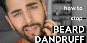 Why's and How's of beard dandruff and tips to get rid of it